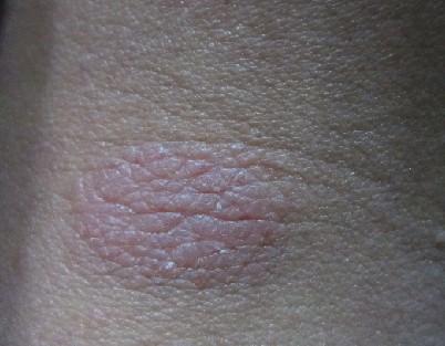 颈部牛皮癣有哪些症状